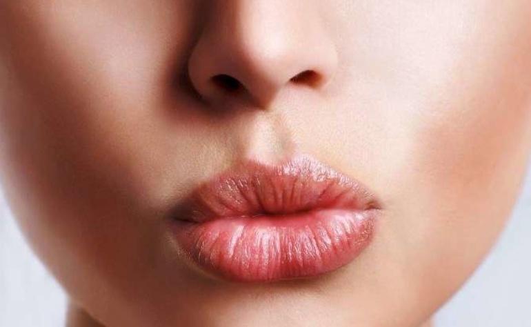 """Rughe contorno labbra, addio: il """"codice a barre"""" si può eliminare"""